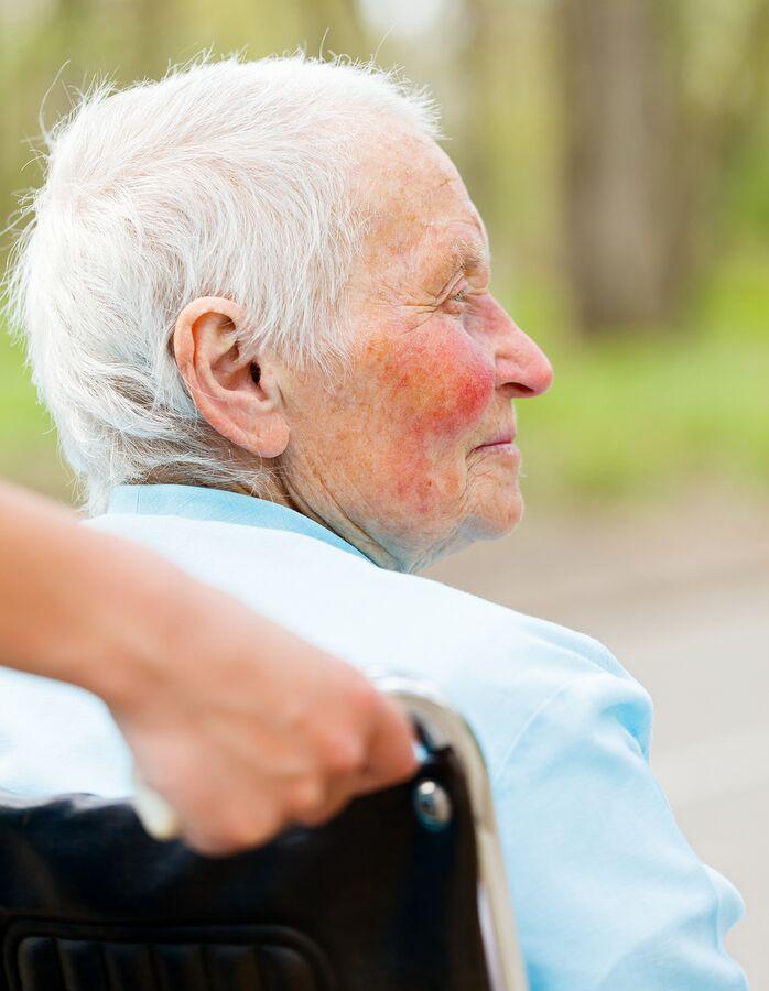 Homecare in Peoria AZ: Signs of Senior Rosacea